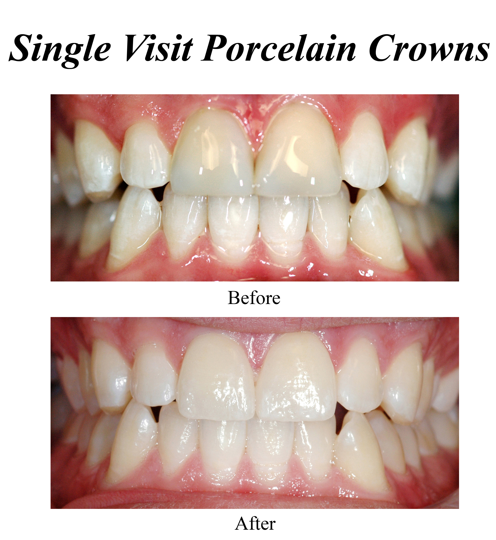 single-visit-porcelain-crowns-1