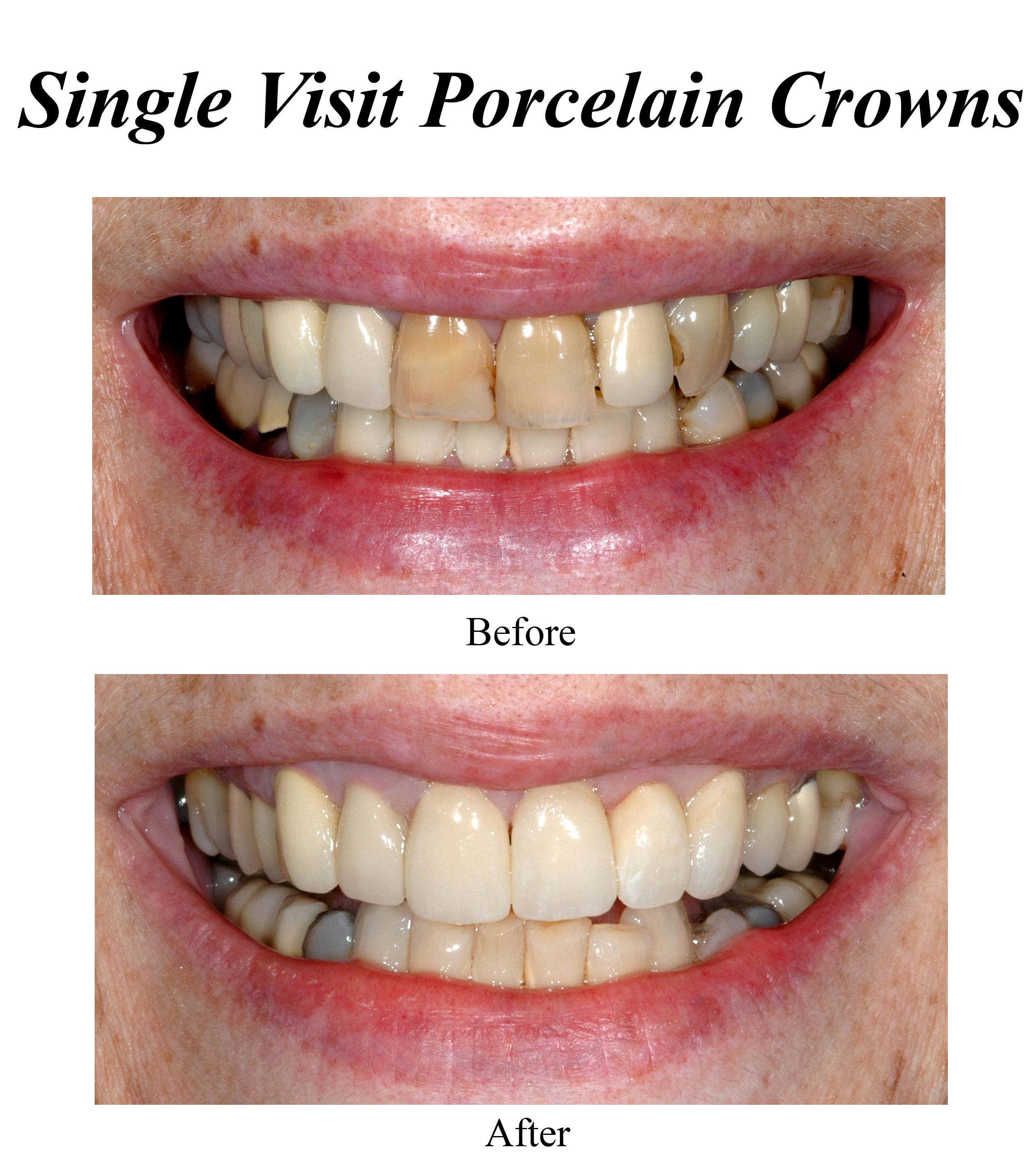 single-visit-porcelain-crowns-2