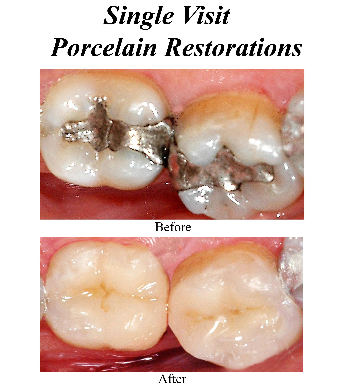 single-visit-porcelain-restorations-1