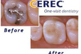 Single Visit Dentistry